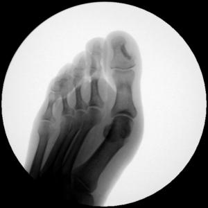 chirurgia del piede Cagliari alluce valgo