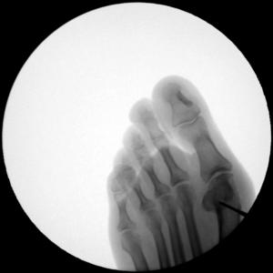 chirurgia del piede Cagliari alluce valgo 2