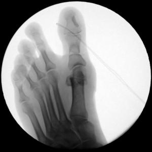 chirurgia del piede Cagliari alluce valgo 4