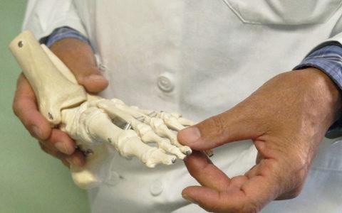 ortopedia piede Cagliari